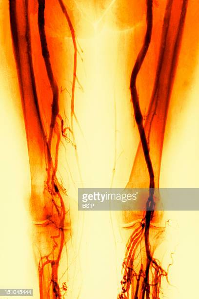 Thrombosis Of The Superficial Femoral Vein And Popliteal Vein Colorised Arteriography
