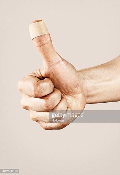 thumb damage - esparadrapo fotografías e imágenes de stock