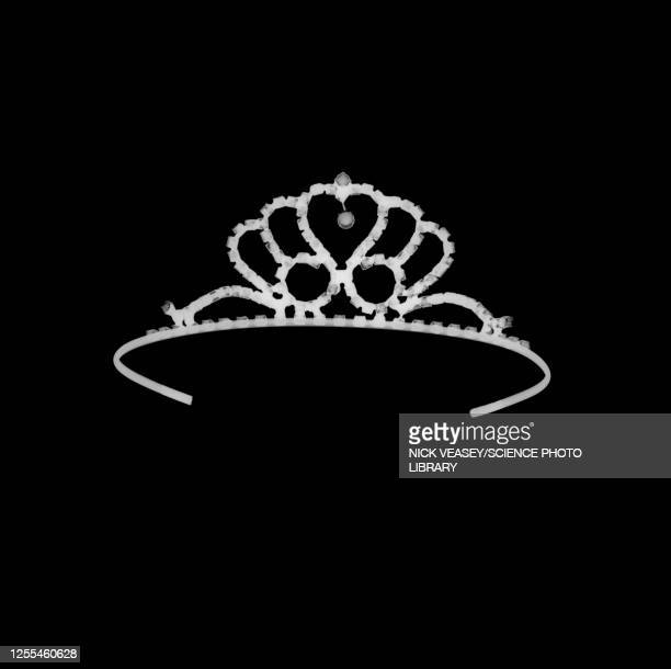 tiara, x-ray - crown stock pictures, royalty-free photos & images