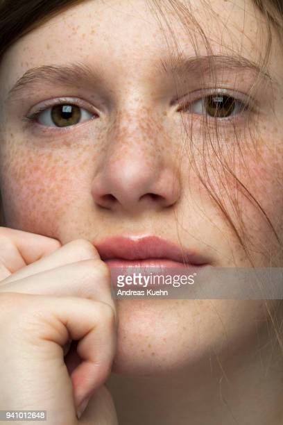 Tight portrait of a teenage girl with pale skin and freckles resting her chin on one of her hands with delicate strands of hair coming down her cheek.