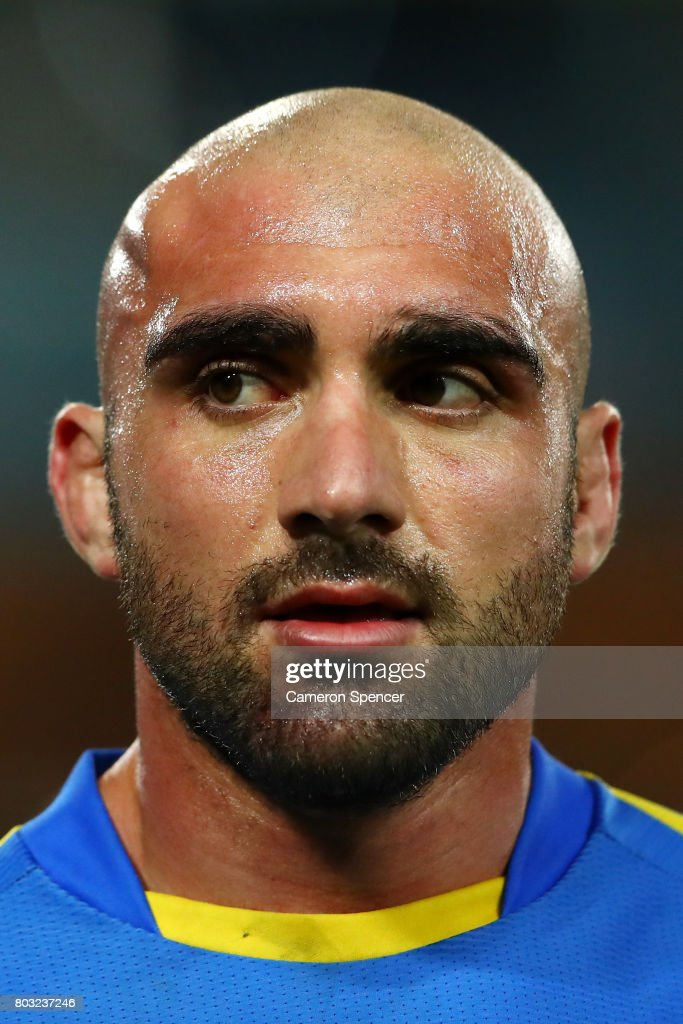Tim Mannah of the Eels leaves the field with a haematoma during the round 17 NRL match between the Parramatta Eels and the Canterbury Bulldogs at ANZ Stadium on June 29, 2017 in Sydney, Australia.
