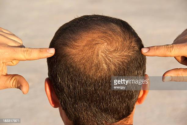 to become bald - completely bald stock pictures, royalty-free photos & images