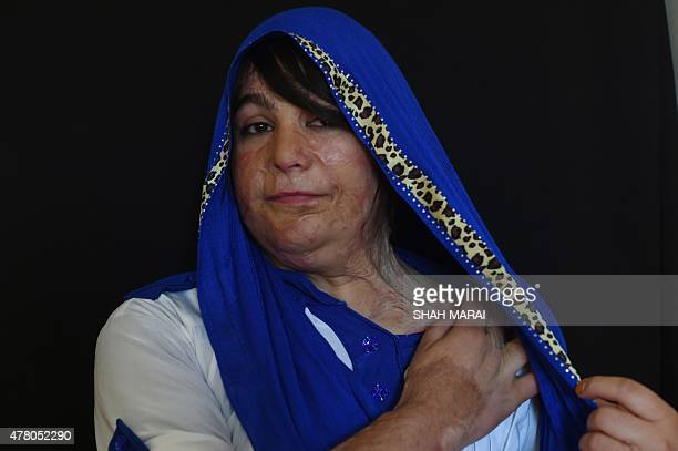To go with 'AfghanistanunrestwomenmilitiasFOCUS' by Anuj Chopra In this photograph taken on May 20 twenty year old Afghan acid attack victim Mumtaz...