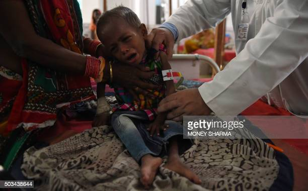 To go with 'IndiaSocialPovertyMalnutrition' FEATURE by Agnes BUN In this photograph taken on October 19 four year old malnourished Indian child...
