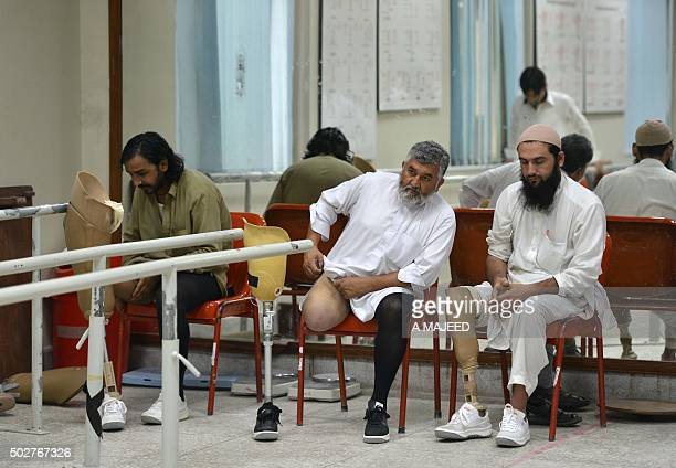 To go with 'Pakistan-unrest-casualties-IEDS' by Issam AHMED In this photograph taken on September 2 Pakistani improvised explosive device victims sit...