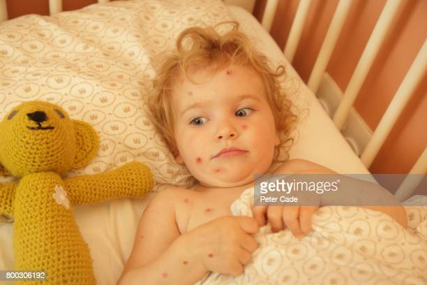 toddler in bed with chicken pox - chickenpox stock pictures, royalty-free photos & images