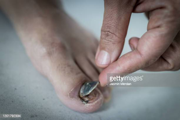 toe nail peeling off - images of ugly feet stock pictures, royalty-free photos & images