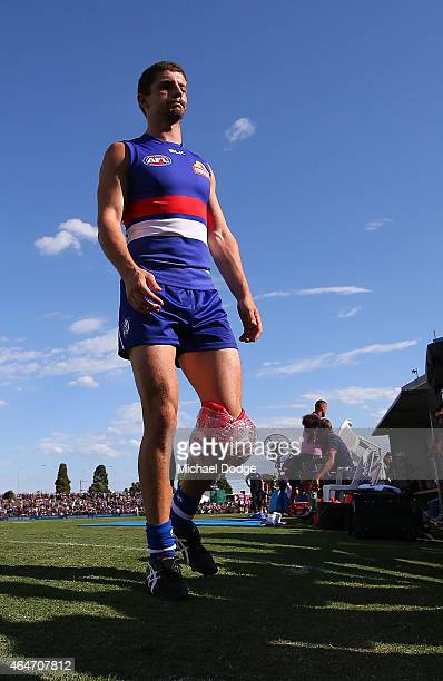Tom Liberatore of the Bulldogs hobbles off with a knee injury during the NAB Challenge AFL match between the Western Bulldogs and the Richmond Tigers...