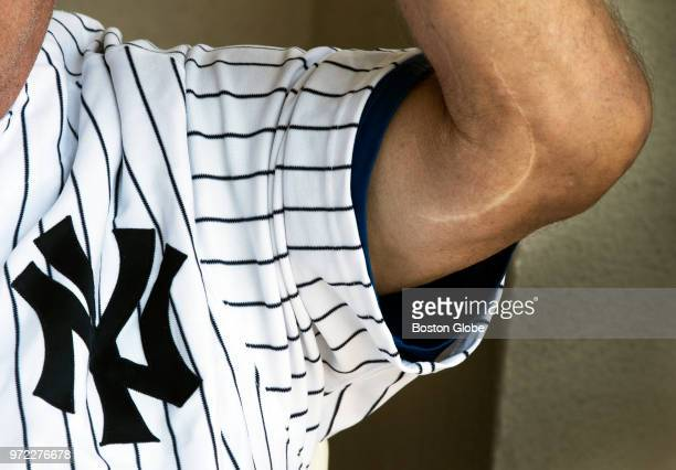 Tommy John, the 4 time All Star Major League Baseball pitcher who won 288 games, shows the famous scar on his elbow in La Quinta, CA on April 28,...