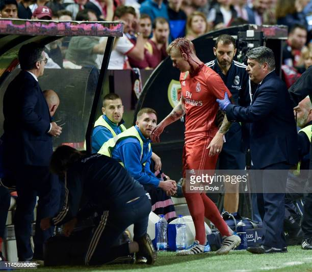 Toni Kroos of Real Madrid is taken off with an injury to the head during the La Liga match between Rayo Vallecano de Madrid and Real Madrid CF at...