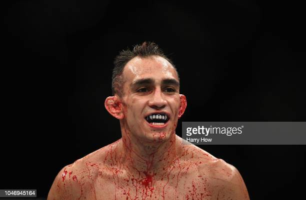 Tony Ferguson looks on while competing against Anthony Pettis in their lightweight bout during the UFC 229 event inside TMobile Arena on October 6...