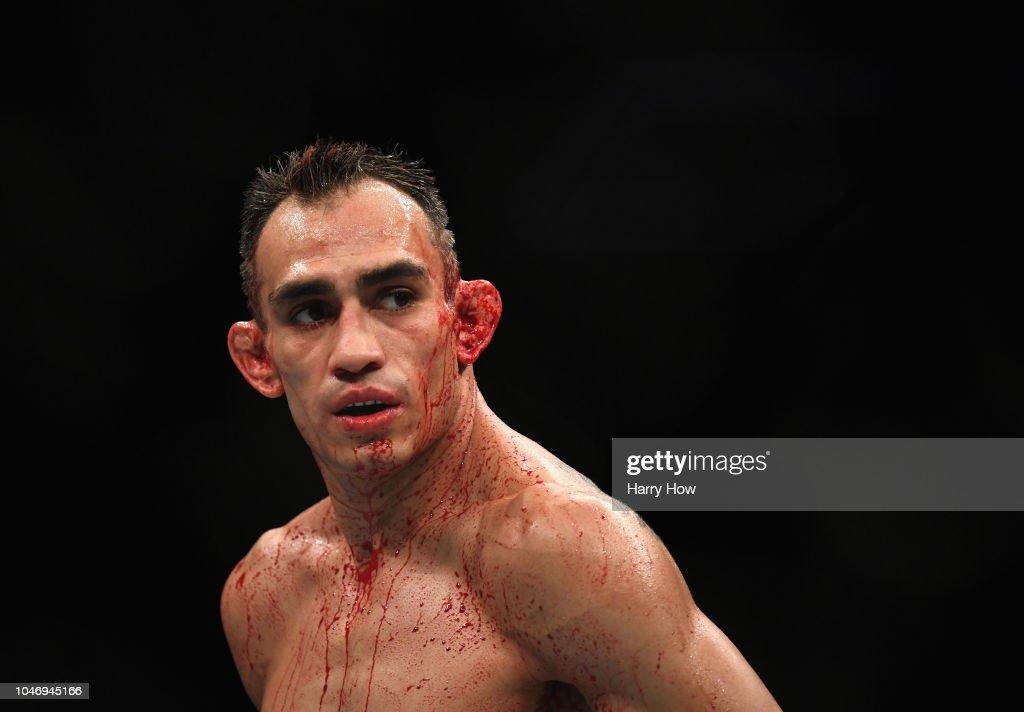 UFC 229: Ferguson v Pettis : News Photo
