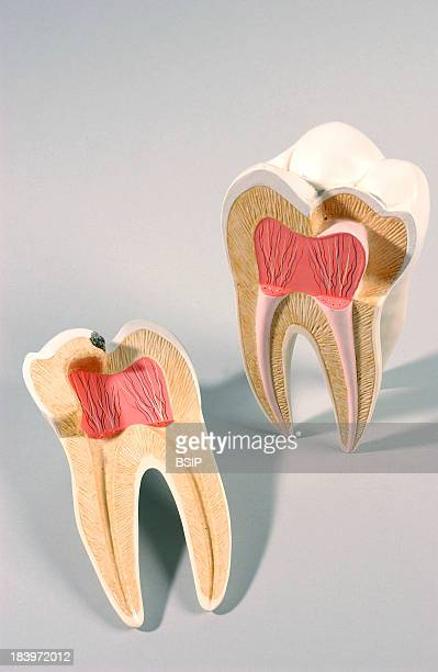 Tooth Decay Molar Shows A Tooth Decay In Black At The Crown Level That Reachs The Dentin Layer Secondary Dentinal Caries