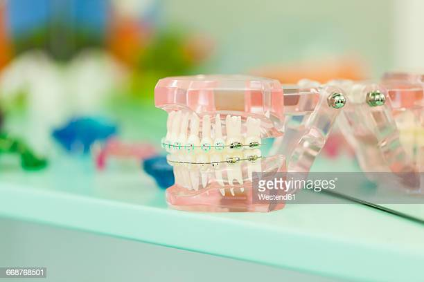 Tooth model with braces