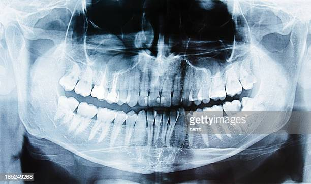 Tooth X-ray