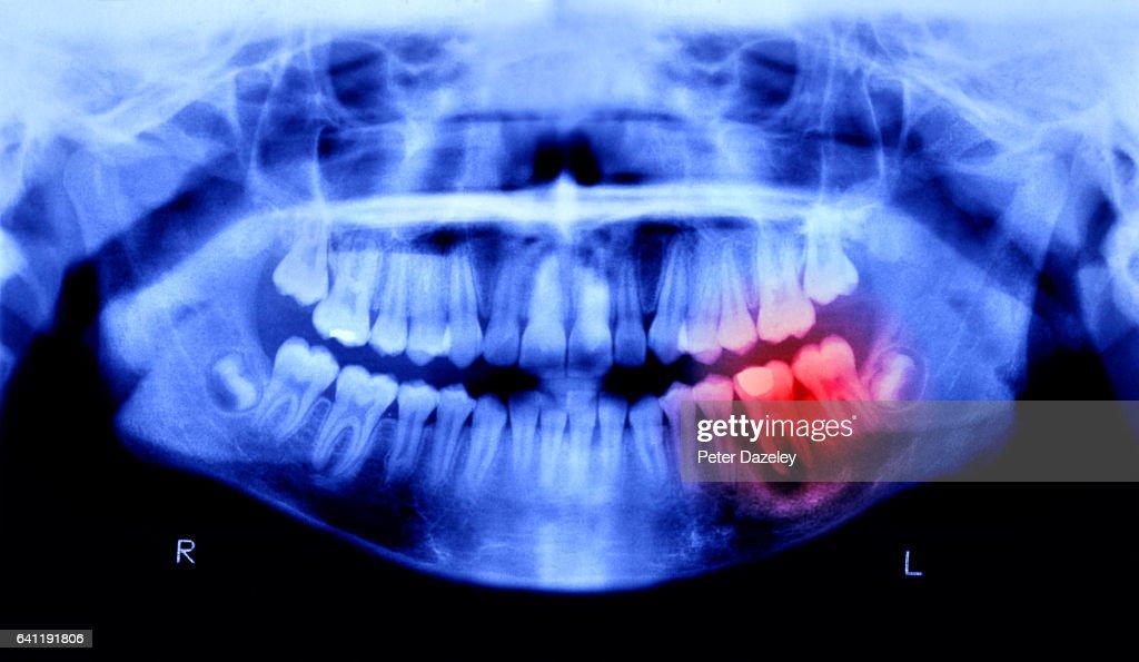 Toothache pain : Stock Photo