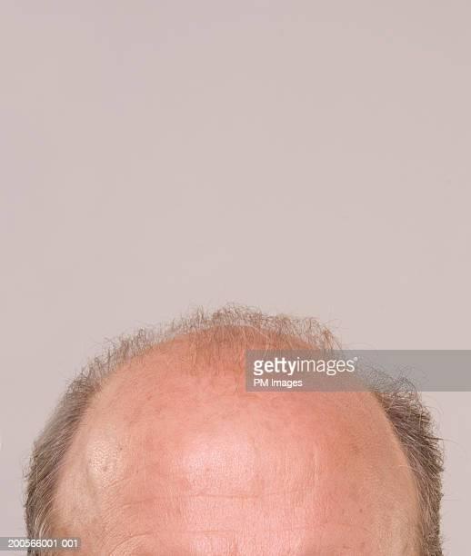 Top of balding man's head