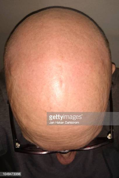 top view of bald man - completely bald stock photos and pictures