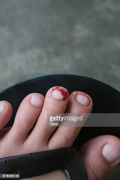 Torn toenail and bleeding toe