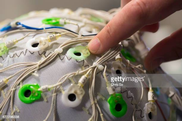 TORONTO ON Toronto ON MAY 26 2014 A close up view of some of the 64 eextrudes embedded in an EEG cap on the head of former NHL player Bryan Muir The...