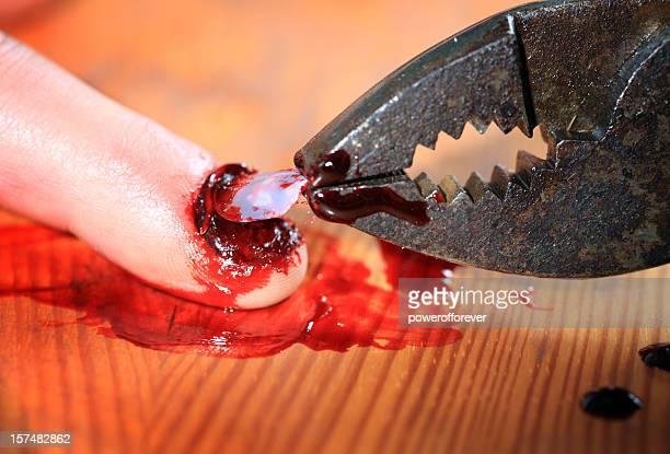 torture - denailing - torture stock pictures, royalty-free photos & images