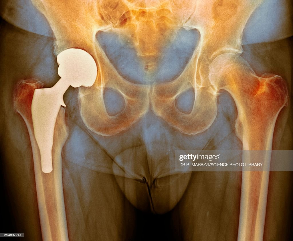 Total hip replacement, X-ray : Stock Photo