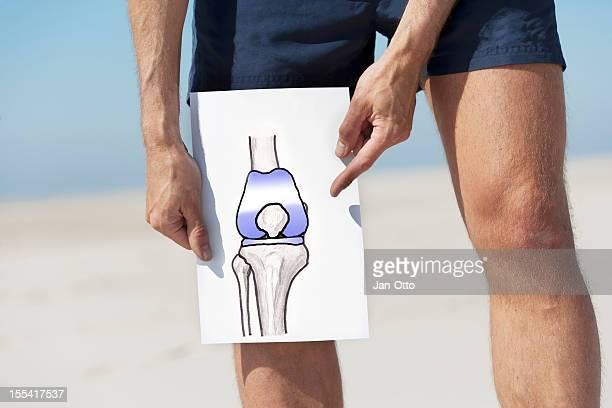 Insgesamt Knie Erneuerung
