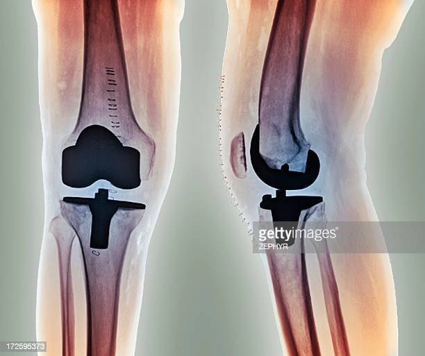 total knee replacement, x-rays - knee replacement surgery stock pictures, royalty-free photos & images