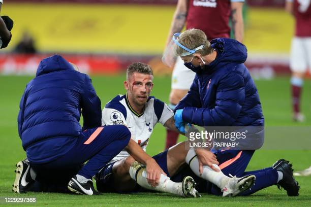 Tottenham Hotspur's Belgian defender Toby Alderweireld has a head-wound looked at by medical staff after a challenge from Burnley's English striker...