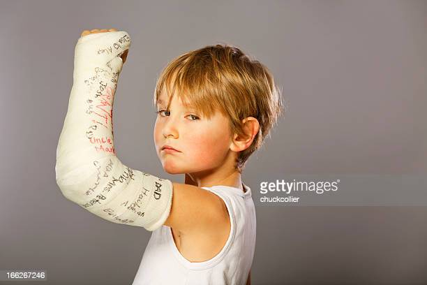 tough guy - broken arm stock pictures, royalty-free photos & images