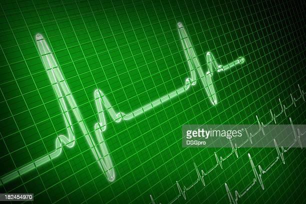 Trace d'EKG