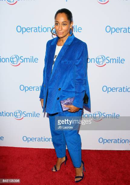Tracee Ellis Ross attends Operation Smile's Annual Smile Gala on September 9, 2017 in Santa Monica, California.