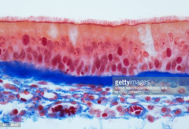Trachel epithelium, LM
