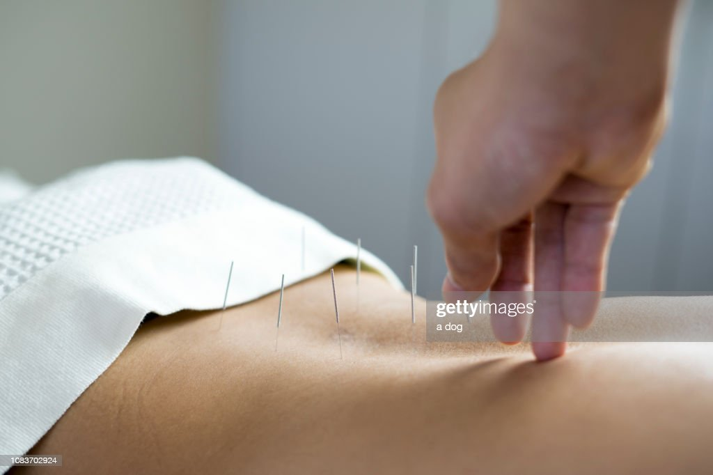 traditional acupuncture treatment : Foto de stock