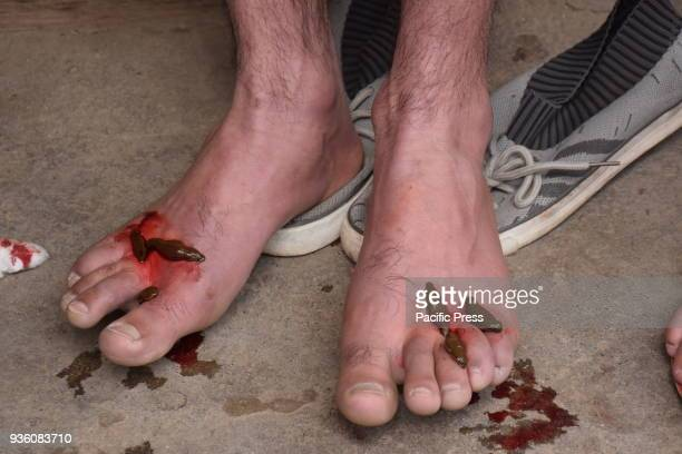 HAZRATBAL SRINAGAR JAMMU KASHMIR INDIA Traditional health workers use leeches to suck blood as part of a treatment at Hazratbal on the banks of the...