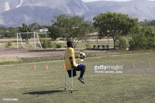 TOPSHOT A training session of the Haitian football selection of players with amputated limbs is seen on September 14 2018 in Croixdes Bouquets Haiti...