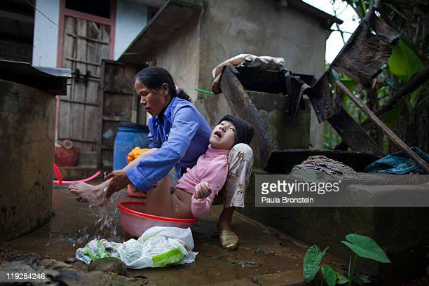 Tran Thi Nghien bathes her handicapped daughter Hung at their home March 8 in Cam Lo in Quang Tri province Vietnam Many of the families have had...
