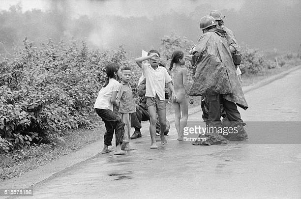 Trang Bang South Vietnam A Vietnamese girl has her eyes treated and a crying boy covers his eyes as he is treated June 8 after accidental napalm...