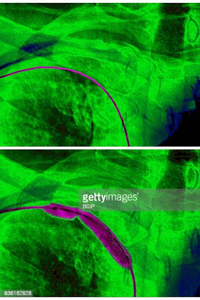 Transluminal agioplasty of the right subclavian artery seen on a frontal chest xray