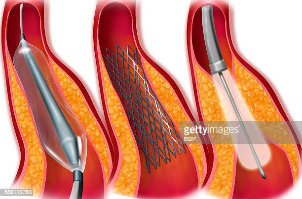 Treating stenosis with angioplasty balloon stent laser