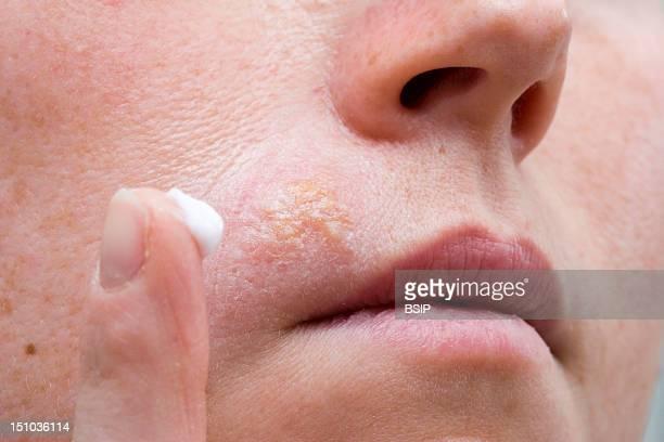 Treatment Of Labial Herpes With The Cream Zovirax Aciclovir Antiviral