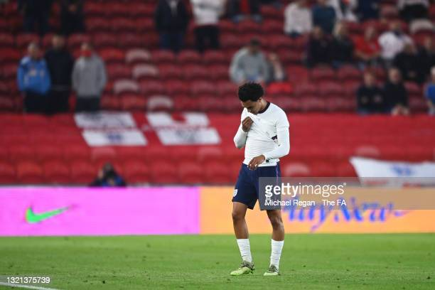 Trent Alexander-Arnold of England leaves the field after receiving medical attention during the international friendly match between England and...