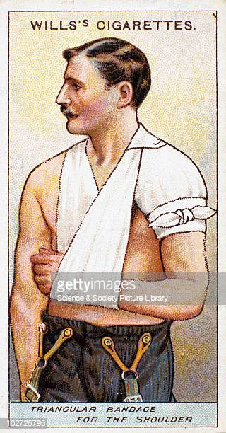 Triangular bandage for the shoulder' Wills' cigarette card 1913 One of a series of 50 'First Aid' cigarette cards issued by WD HO Wills The image...