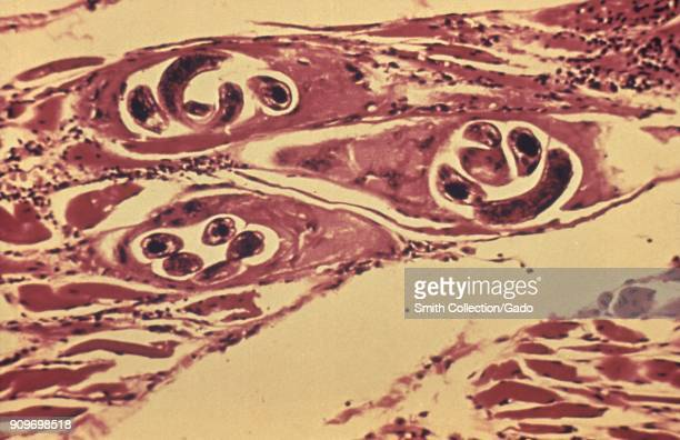 Trichinella cysts developing in the human muscle tissue revealed in the micrograph film, 1982. Image courtesy Centers for Disease Control .