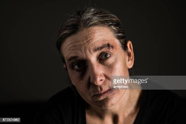 troubled emotions - sad 40 years old woman - bruise stock pictures, royalty-free photos & images