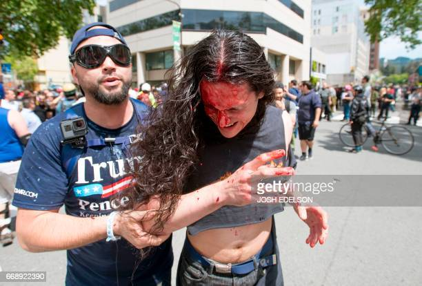 A Trump supporter assists an injured man who was beat up as multiple fights continue to break out between Trump supporters and antiTrump protesters...