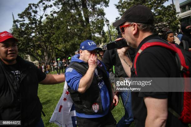 Trump supporter is escorted to safety after violence broke out during a proTrump rally in Berkeley USA on April 15 2017 A large number of fights have...