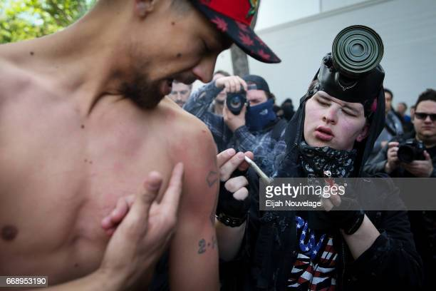 Trump supporter shows a protester a bruise from an earlier clash at a 'Patriots Day' free speech rally on April 15 2017 in Berkeley California More...