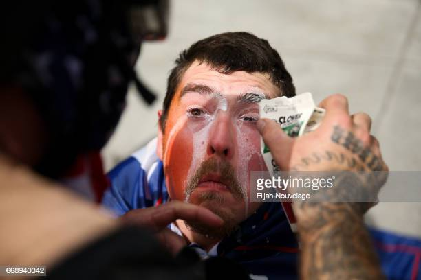 Trump supporter who'd been pepper sprayed has milk poured into his eyes during a clash with protesters at a 'Patriots Day' free speech rally on April...