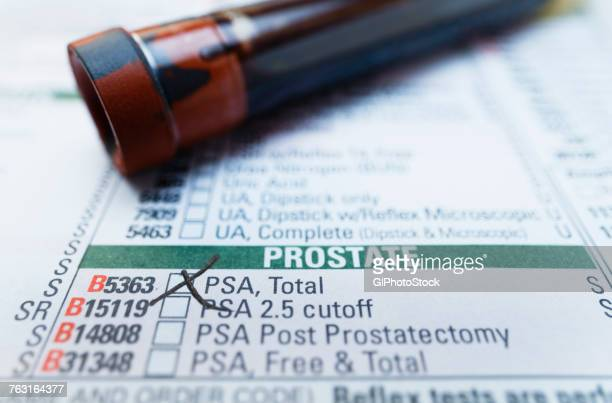 tube containing blood sample on a bloodwork requisition form that lists a test for prostate-specific antigen (psa) - psa stock photos and pictures